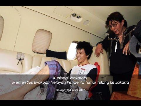 [NEWS] Menteri Susi Evakuasi Nelayan Wakatobi Penderita Tumor Tulang ke Jakarta