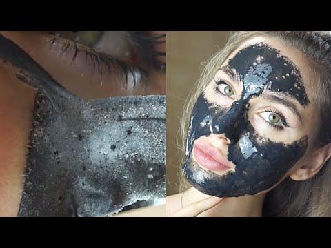 Как бороться с расширенными порами на лице? //Large pores go away from my face