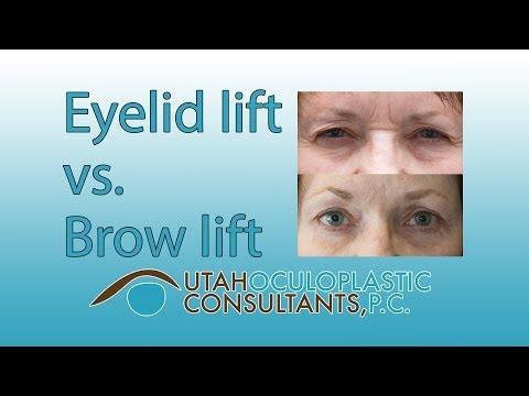 Eyelid lift vs brow lift