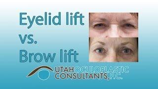 Eyelid lift vs brow lift Video