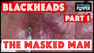 WEB EXCLUSIVE: The Masked Man! Extensive Solar Comedones, Session 3 (Part 1 of 2)