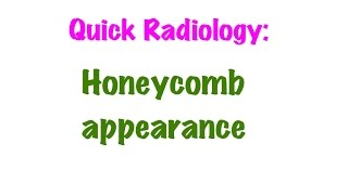 QUICK RADIOLOGY: Honeycomb appearance on x ray