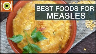Best Foods to Cure Measles | Healthy Recipes