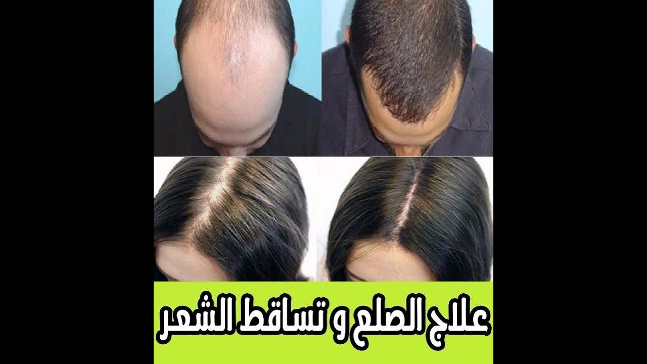 جهاز اعادة نمو الشعر - power super comb - تقوية جذور الشعر؟ تخلص من الصلع جهاز و فرشاة اعادة نمو شعر
