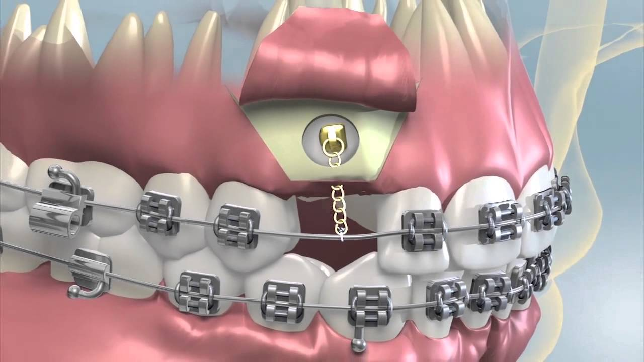Impacted Tooth Exposure Amp Uncovering For Orthodontics