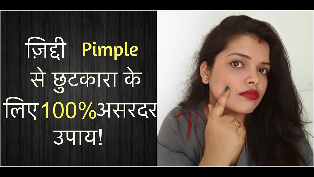 म ह स प म पल Pimple Treatment Hacks Tips 100
