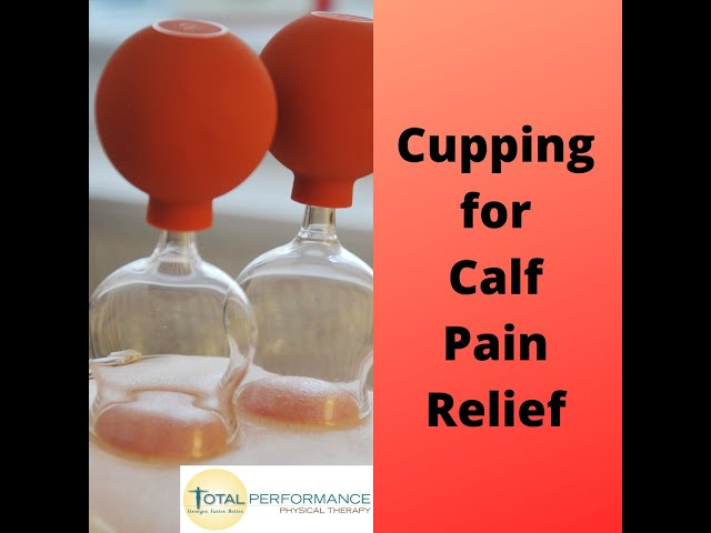 Cupping for calf pain relief