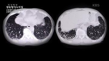 류마티스 관절염이 가져오는 합병증 [생로병사의 비밀] | KBS 210217 방송
