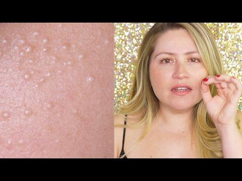 hqdefault - Hard Bumps On Face That Arent Pimples