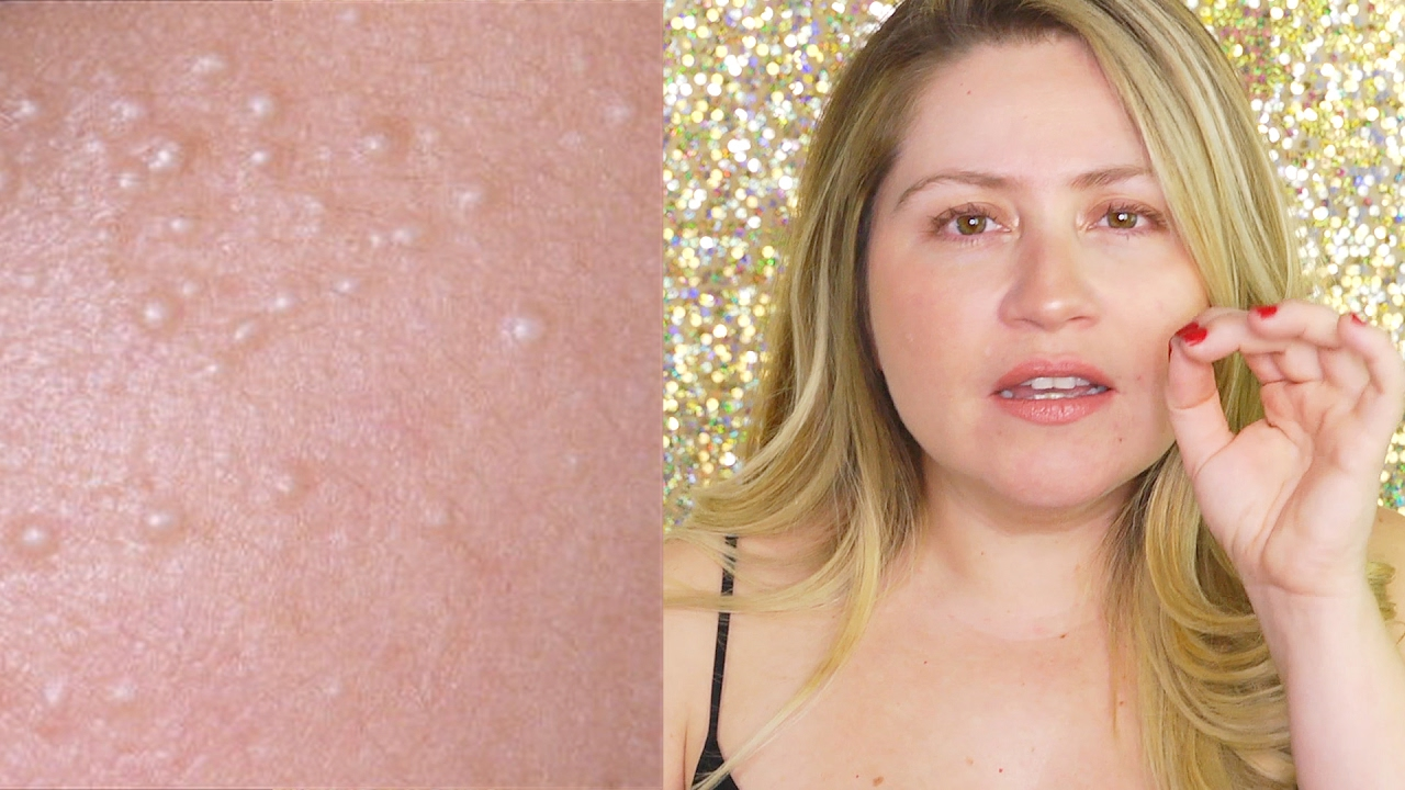 How To Get Rid Of Milia Hard White Bumps Youtube