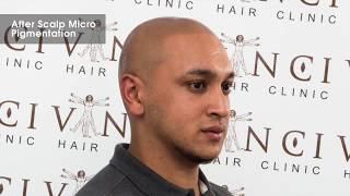 Alopecia Areata Client Amin Talks About His Scalp Pigmentation Treatment