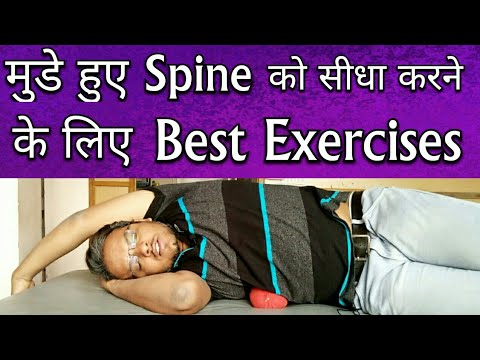 Best SCOLIOSIS Exercises – Exercises To Correct Scoliosis Completely At Home – Scoliosis Treatment