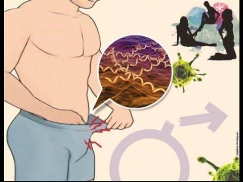 obat-luka-lecet-di-kelamin-pria-paling-ampuh-dan-manjur
