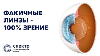 Имплантация факичных линз. Результат 100% зрение.
