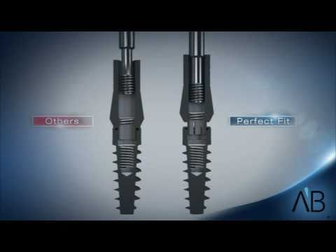 AB Dental Implants- Perfect Fit Technology - YouTube