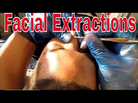 How to Get Rid of Acne with an Extractor Tool, Dermaplaning & a Chemical Peel Tutorial on Youtube