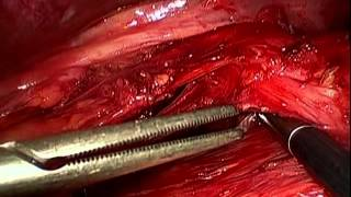 Collis Gastroplasty and Toupet Fundoplication for Giant Paraesophageal Hernia