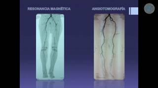 Del la enfermedad síntomas reino vascular unido de