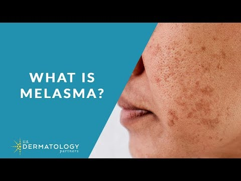 what-is-melasma?-|-melasma-treatment-explained