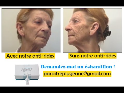 creme anti rides efficace naturelle