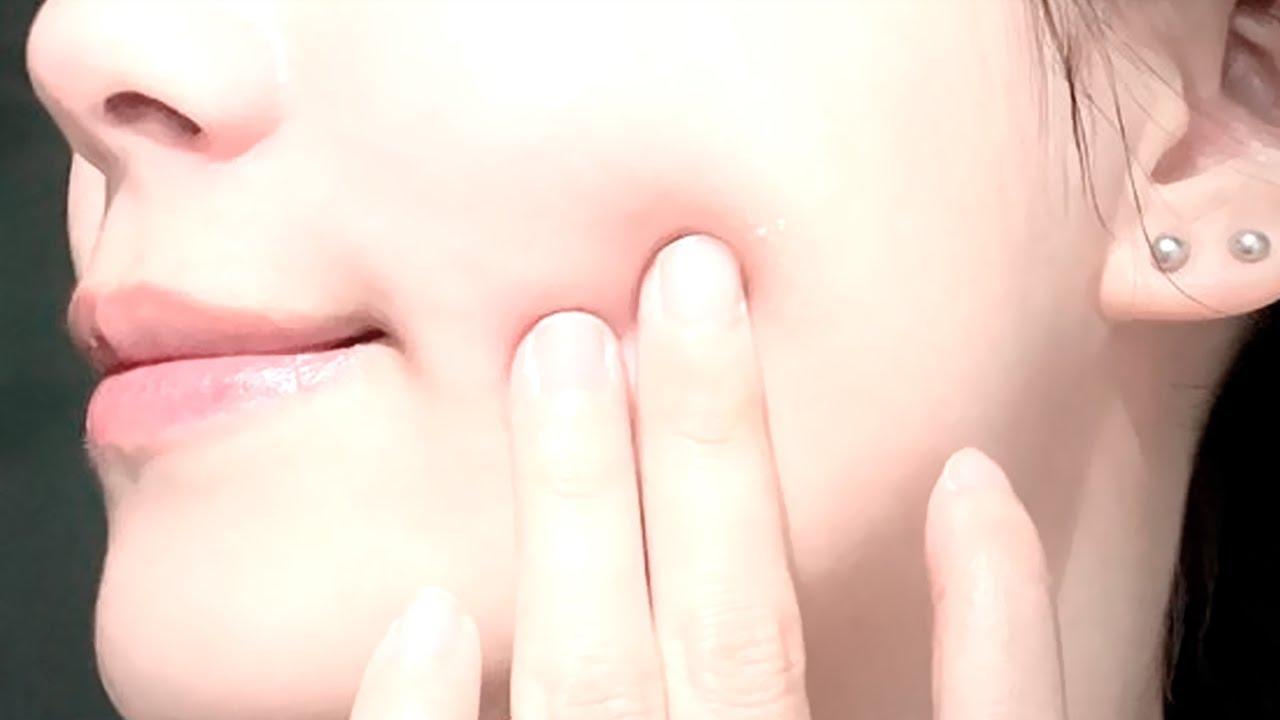 el proyecto para una piel limpia y perfecta # ft. @—Worldwide subs  ¡¡DELUXE!! 🦋 ¹ ᵉˢᶜᵘᶜʰᵃ