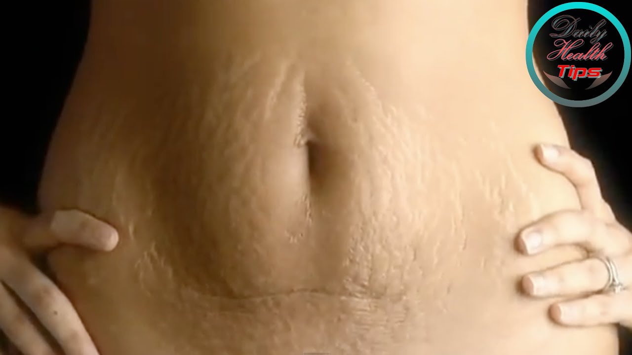 Top 5 effective methods of getting rid of stretch marks