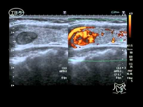 Узлы и кисты щитовидной железы - причины, симптомы
