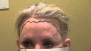 Woman Receding Hairline and Corner Transplant Restoration Treatment Dr. Diep www.mhtaclinic.com