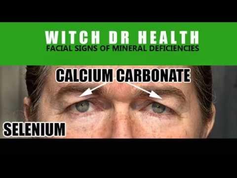 Facial Signs -Selenium & Cal Carb Deficiencies - Short Series