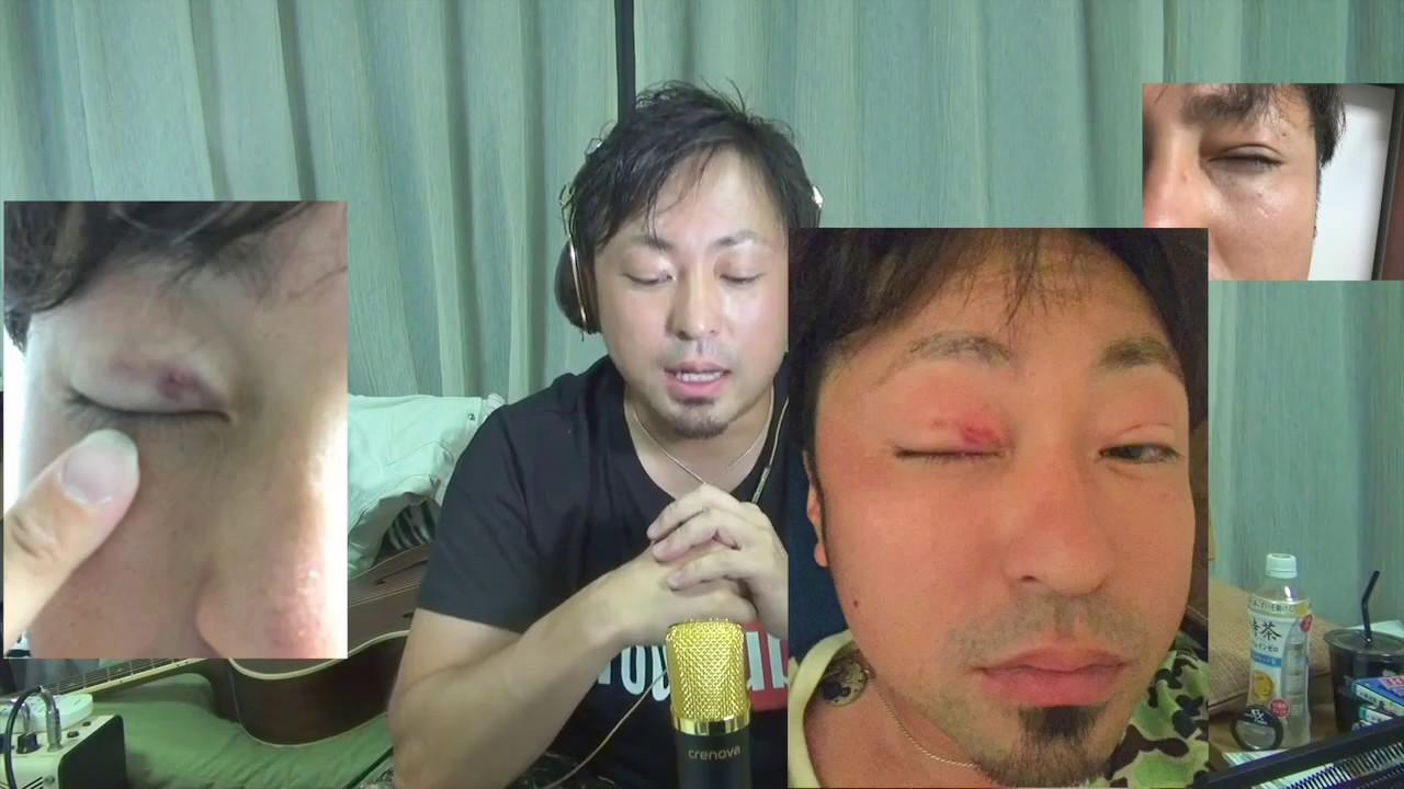 ビフォーアフター 男 二重整形
