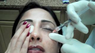Restylane Injection to Lower Eyelid Tear Troughs to Reduce Dark Circles Chevy Chase Maryland