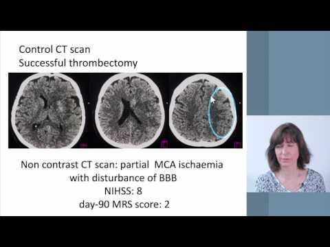 BESC 5 11 2017 Multiphase CT Angiogram   Dr Pozsar