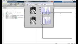 Histogram equalisation and contrast steching in Matlab