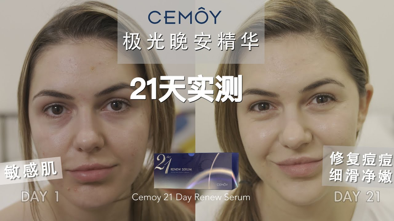 DOES IT WORK | CEMOY Renew Serum 21 Days Trial