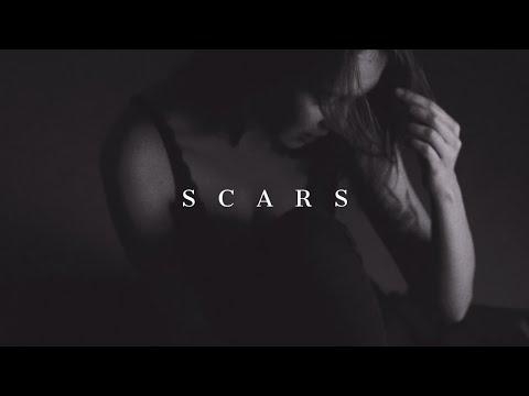 """Scars"" - Sad Emotional Storytelling Deep Love Guitar Rap Beat Hip Hop Instrumental"