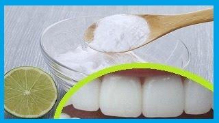 Como blanquear los dientes con bicarbonato de sodio y con limon, blanqueamiento dental