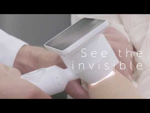 Barco Demetra: a smarter way of doing skin exams