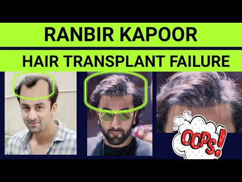 Case Study: Ranbir Kapoor's Hair Transplant Case | Detectable Hair Line | Reason Of Baldness | The S