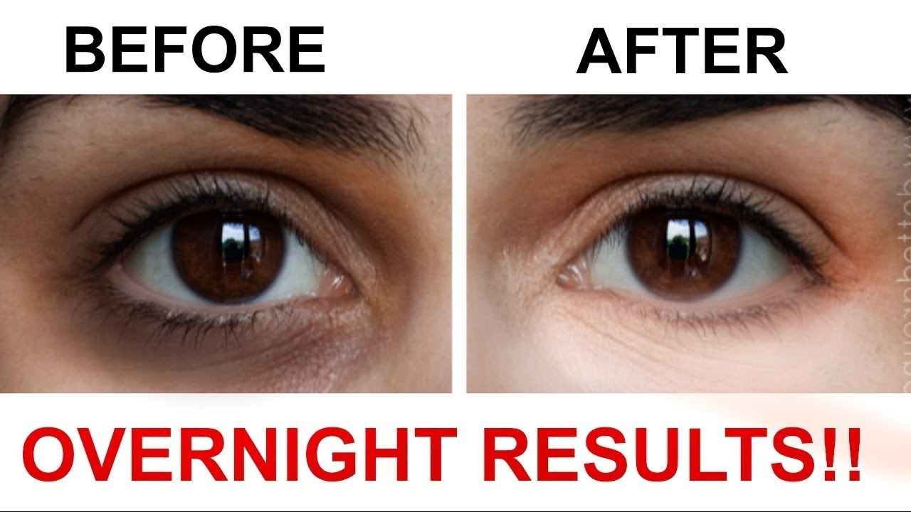 Dark Circles Under Eyes Overnight Treatment || Desi Home ...