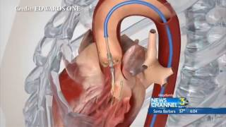 Cottage Health - One Year Anniversary of Successful TAVR Surgeries