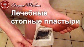 Пластырь для стоп - лечебные пластыри для ног (стопные):