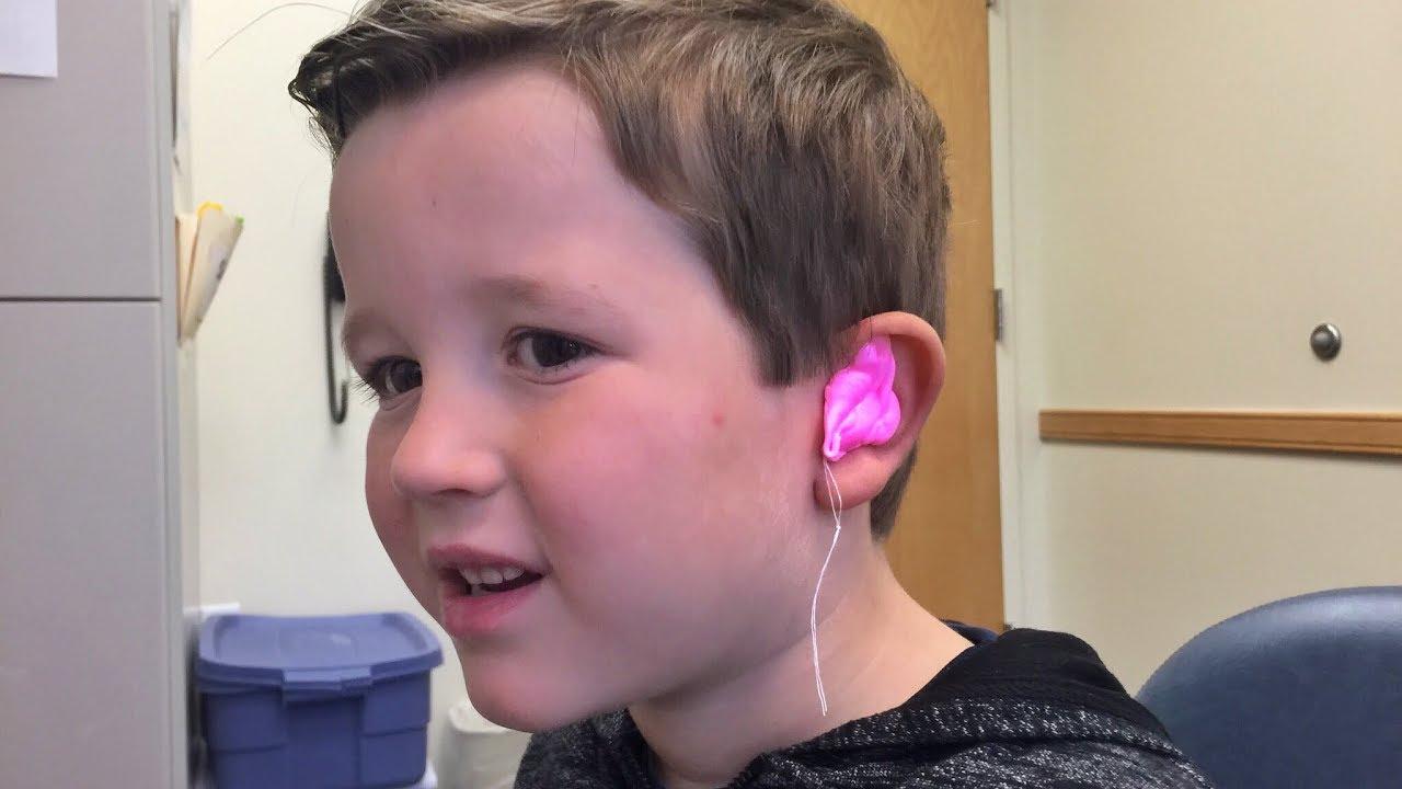 making-an-ear-mold