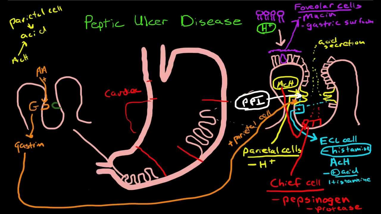 Peptic Ulcer Disease Pathophysiology