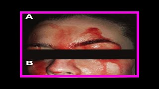 A case of blood sweating: hematohidrosis syndrome- News N&N Chanel