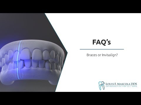 Braces or Invisalign? | Louis F. Mascola, DDS