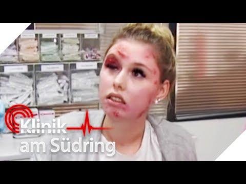 Lebensgefährlicher Pickel: Wird sie blind, weil sie rumgedrückt hat? | Klinik am Südring | SAT.1 TV