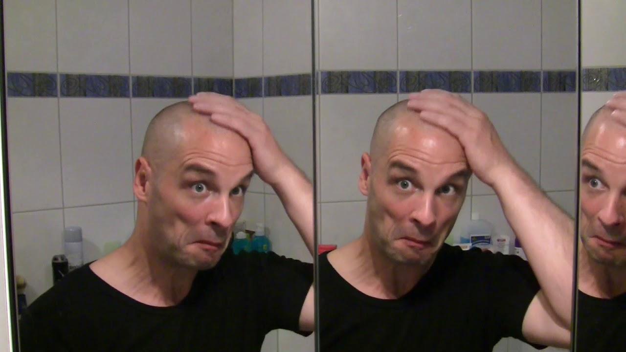 Haarausfall Ja Und Dann Rasiere Ich Mir Eben Eine Glatze