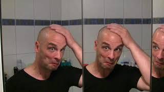 Haarausfall...ja und!? Dann rasiere ich mir eben eine Glatze!