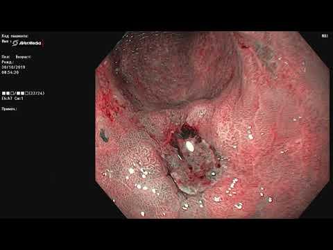 Язва тела желудка на фоне приема НПВС. Атрофия и метаплазия. Исключение неоплазии.