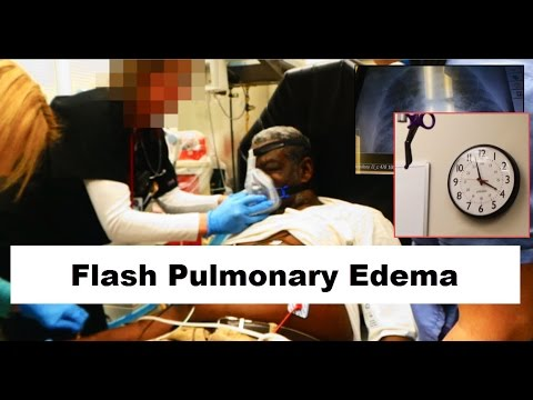 How to treat flash pulmonary edema